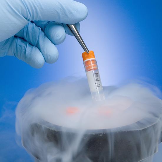 congelamento-de-ovulos-550x550